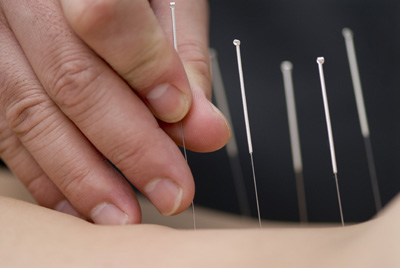 acupuncture_1_1_.jpg